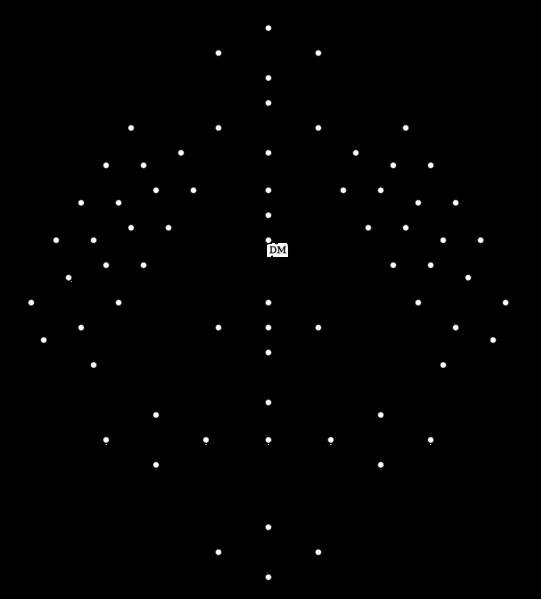 Diagrama de Hasse