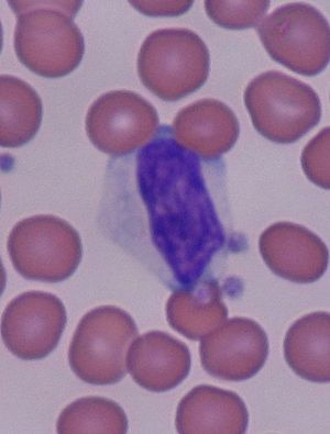 Reactive lymphocyte - Reactive lymphocyte surrounded by red blood cells