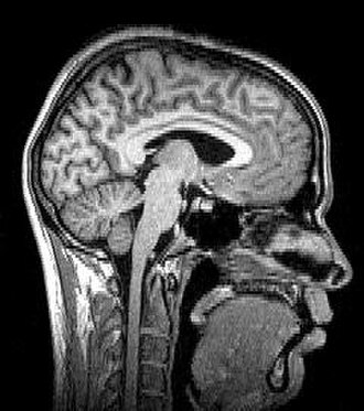 Tomography - Median plane sagittal tomography of the head by magnetic resonance imaging.