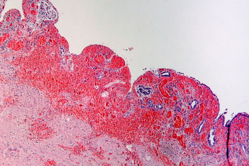 Datei:Severe acute ulcerated and hemorrhagic cholecystitis, HE 1.JPG