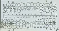 Sumter jane doe teeth chart.jpg