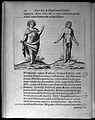 Two human figures showing abnormalities Wellcome L0033292.jpg
