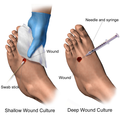 Wound Culture (Gloved).png