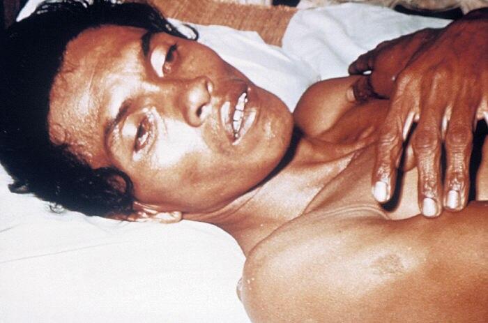 Човек с тежка дехидратация от холера, причиняваща хлътнали очи и сбръчкана кожа.