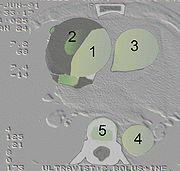 AoDiss CT A-Diss01.jpg