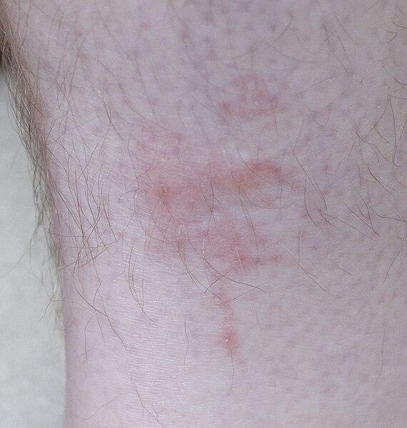 File:Bedbug bites on human leg 2.jpg