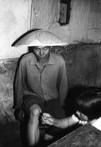Barefoot doctor - A barefoot doctor performs acupuncture on a man