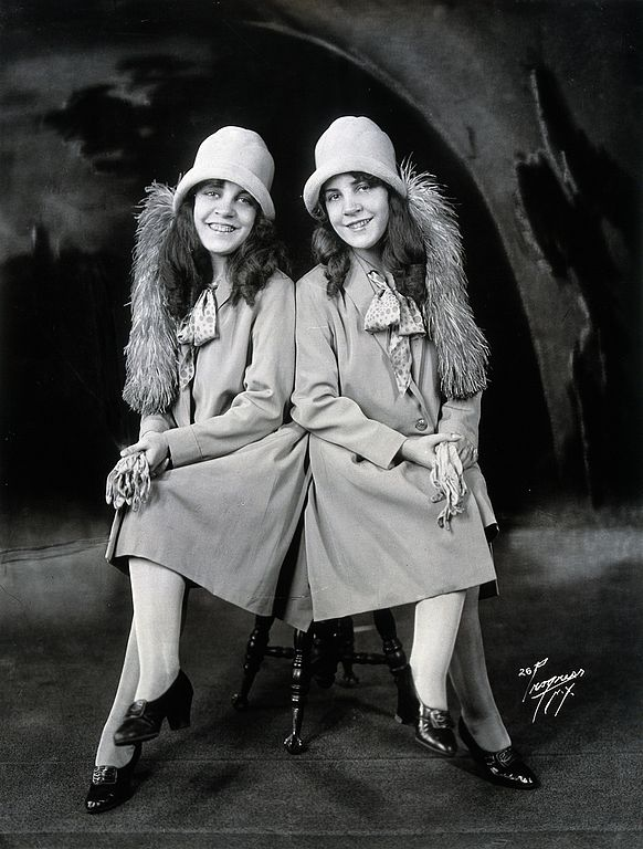 file daisy and violet hilton conjoined twins dressed to go out wellcome. Black Bedroom Furniture Sets. Home Design Ideas