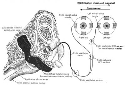 Caloric reflex test - Wikipedia