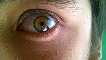 Ante los ojos los círculos negros como curar