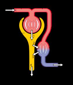 Diabetic Nephropathy Wikipedia