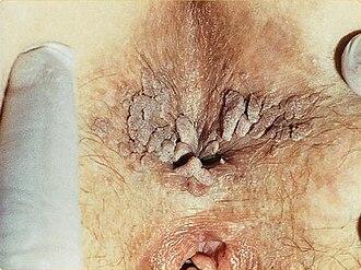 Human anus - Image: SOA Condylomata acuminata around anus