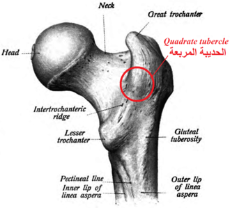 Quadrate tubercle - Right femur. Posterior surface. (Quadratus femoris labeled.)