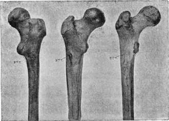 Third trochanter - Human femoral bones featuring third trochanters