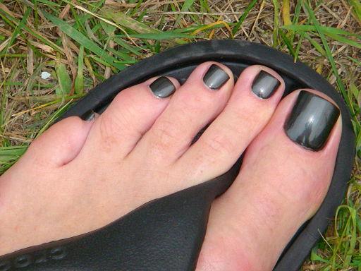 Toe nails black