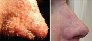 Trichodysplasia spinulosa skin disease found in immunocompromised patients, caused by TSPyV