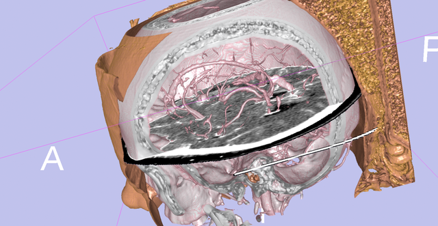Volume rendering of head via Wikipedia (source:3D Slicer's Visual Blog)