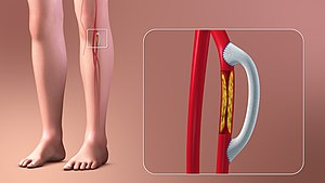 3D Medical Animation still shot depicting the Vascular Bypass Grafting