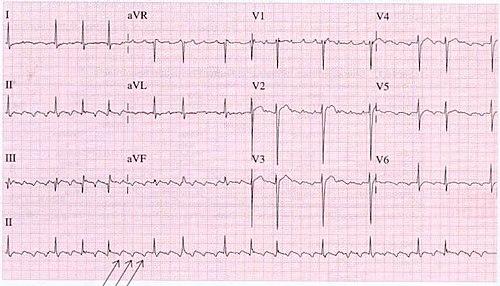 Aflutr ecg (CardioNetworks ECGpedia).jpg