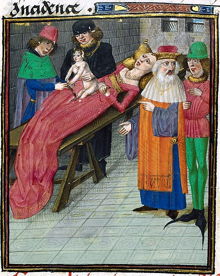 Fictional 15th-century depiction of the birth of Julius Caesar Birth of Caesar.jpg