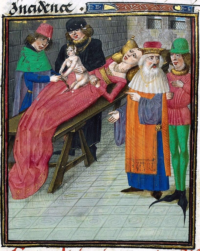 Image result for medieval cesarean section