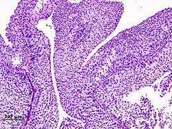 التشريح المرضي النسيجي لسرطانة الخلايا الانتقالية في المثانة بخزعة عبر الإحليل وتلوين بالهيماتوكسيلين إيوسين.