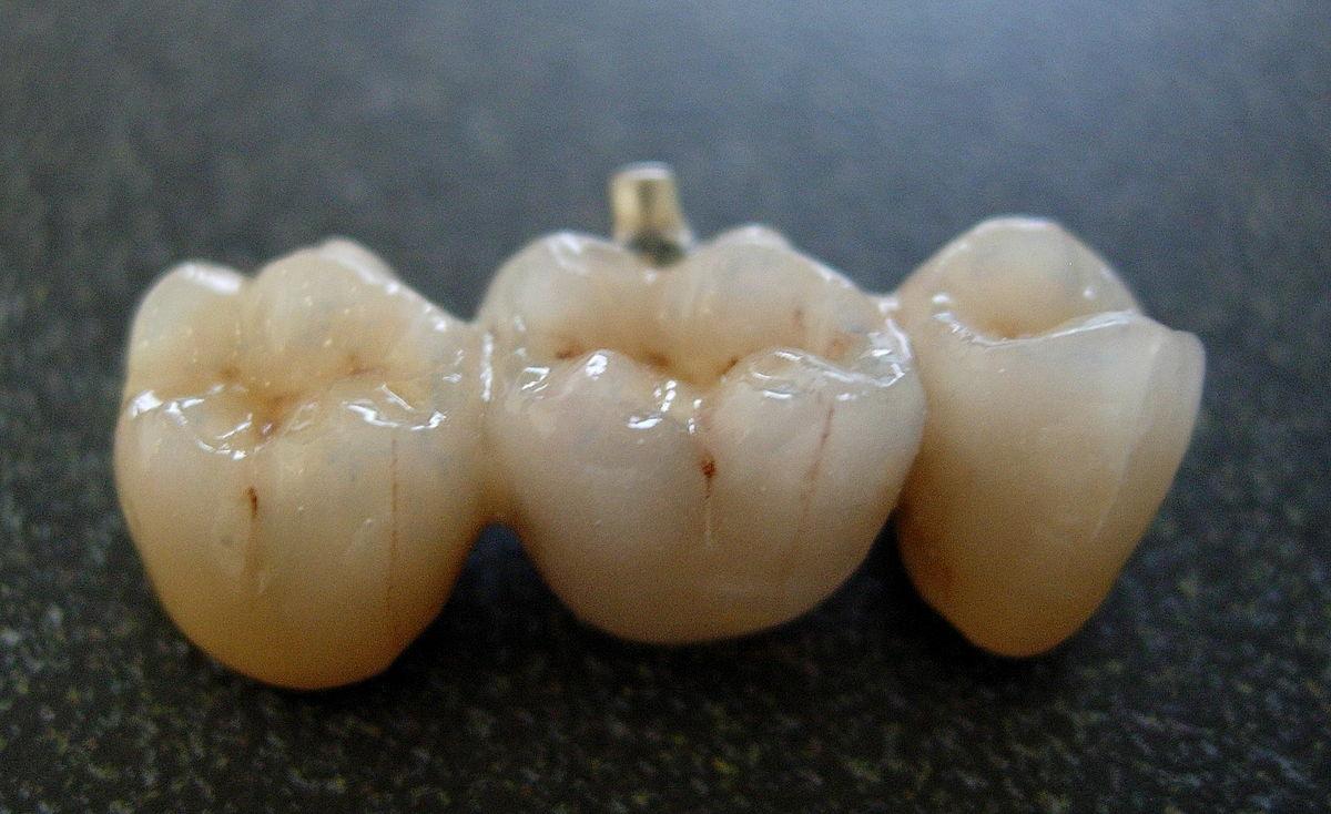 Bridge (dentistry) - Wikipedia