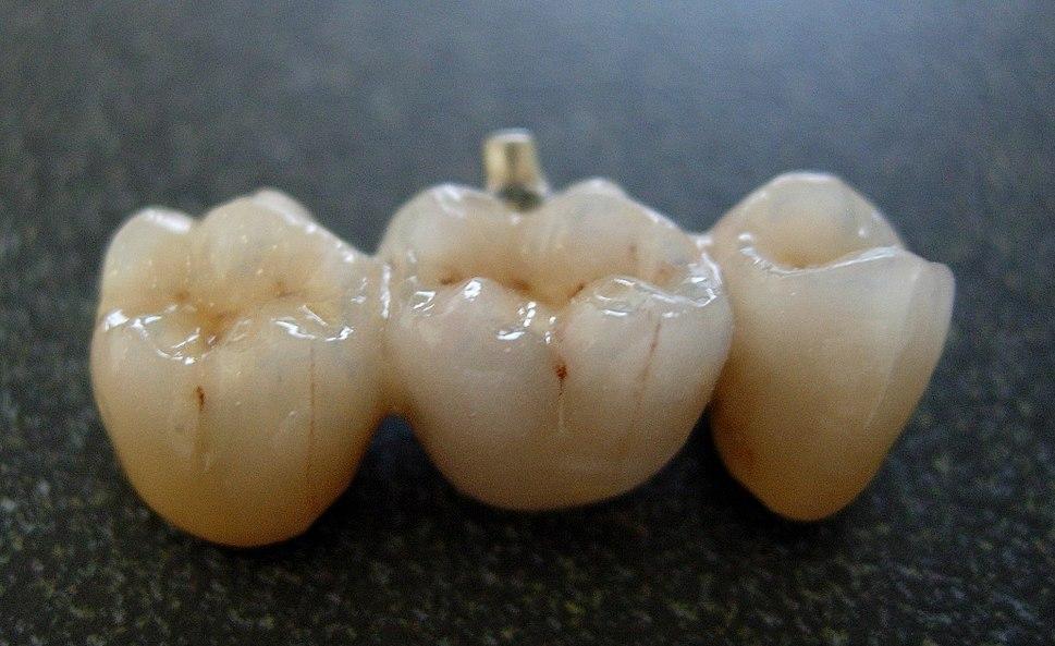 Bridge from dental porcelain