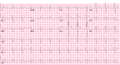 Brugada syndrome type1 example1 (CardioNetworks ECGpedia).png