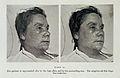 Female with smallpox. Wellcome L0032966.jpg