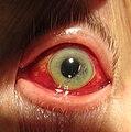Human eye showing subconjunctival hemorrhage.jpg