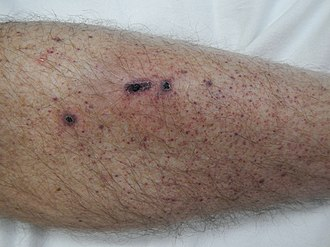 Petechia on the lower leg from thrombocytopenia Petechia lower leg2.jpg