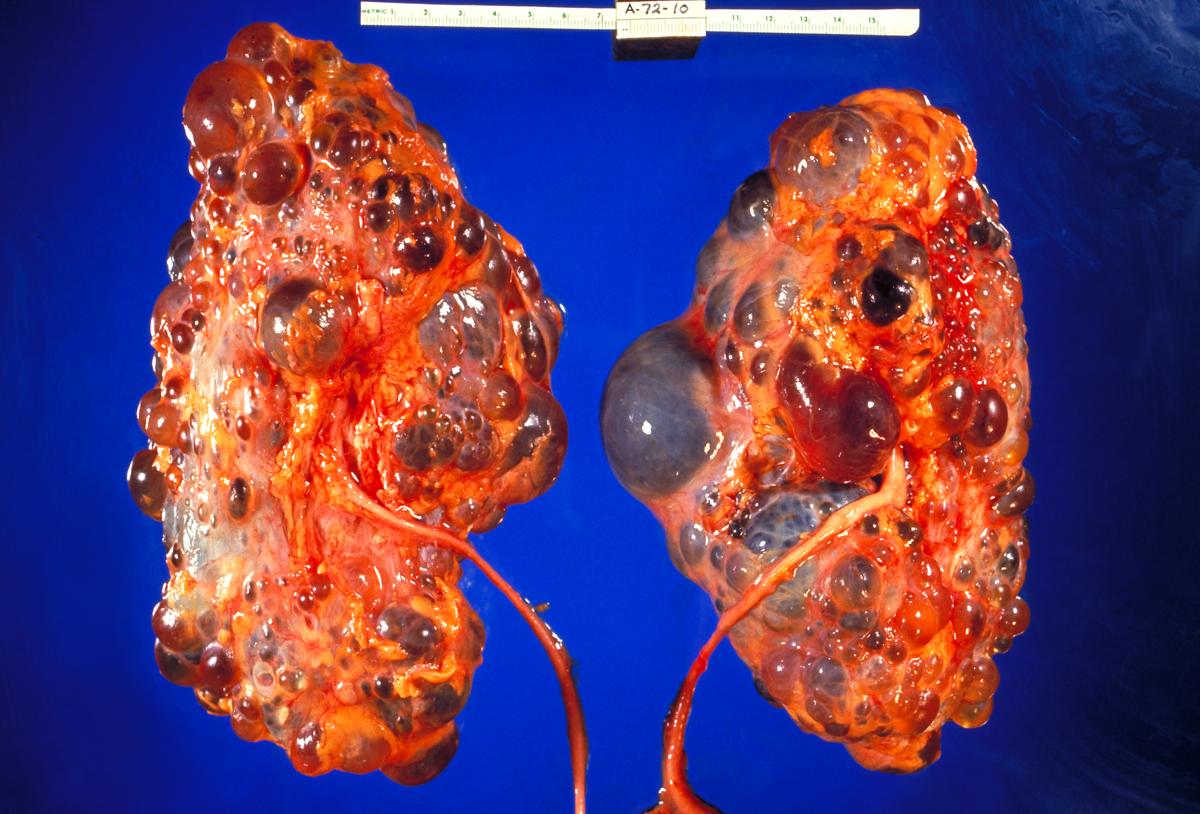 Polycystic Kidney Disease Wikipedia