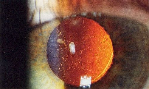 38282af25 صورة إضائة خلفية بمصباح ذو فلعة لعدسة باطن العين تظهر فيها عتامة المحفظة  الخلفية بعد أشهر