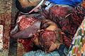 Rabaa field hospital (7).jpg
