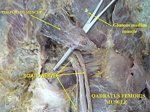 Partial view of the location of the sciatic nerve