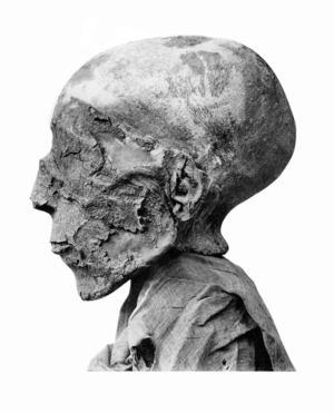 "Aquiline nose - Mummy of the Ancient Egyptian Pharaoh Seti II with an aquiline, ""hook nose"" and son of Merneptah"