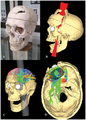 Simulated Connectivity Damage of Phineas Gage.png