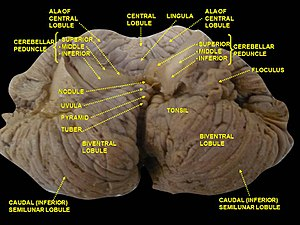 Uvula of cerebellum - Image: Slide 2SEER