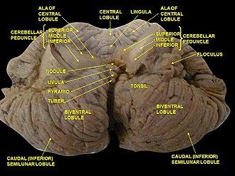 Uvula of cerebellum - Image: Slide 2SEER