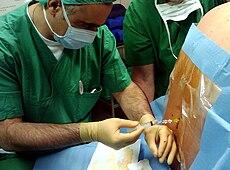 麻酔 脊髄
