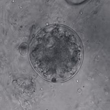 Differential interference contrast image of a spizellomycete chytrid thallus consisting of a large sphere filled with amorphous, bubbly cytoplasm and a much smaller, empty sphere to the left of the large sphere.