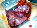 Surgical removal of the esophagus 09.jpg
