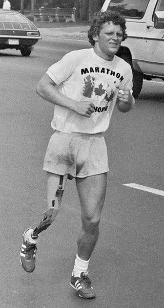 "A young man with short, curly hair and an artificial right leg runs down a street. He wears shorts and a T-shirt that reads ""Marathon of Hope"""