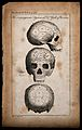 Three perspectives of a skull, sectioned and numbered accord Wellcome V0009478.jpg