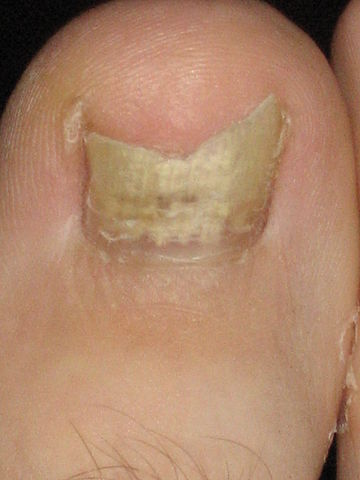 proper foot care - toenail fungus infected nail