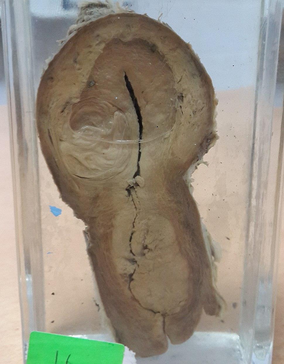 Uterine leiomyoma with cancer cervix