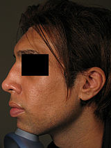 Non-surgical rhinoplasty - Wikipedia