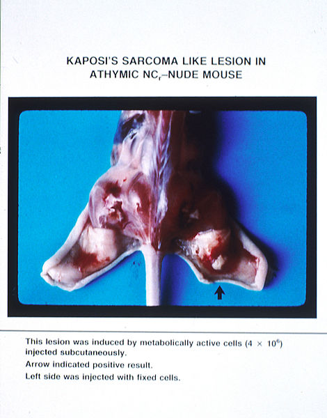File:AIDS lesions on mouse.jpg