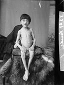 A starving child NLW3362487.jpg